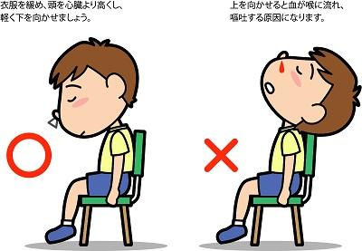 子供鼻血の止め方